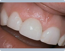 dental-implant-after